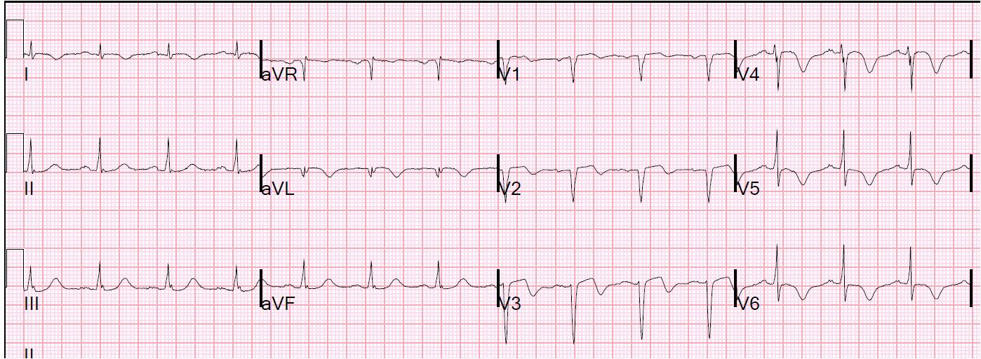 "et al. captured this EKG, stating, ""Thirty days after myocardial ..."