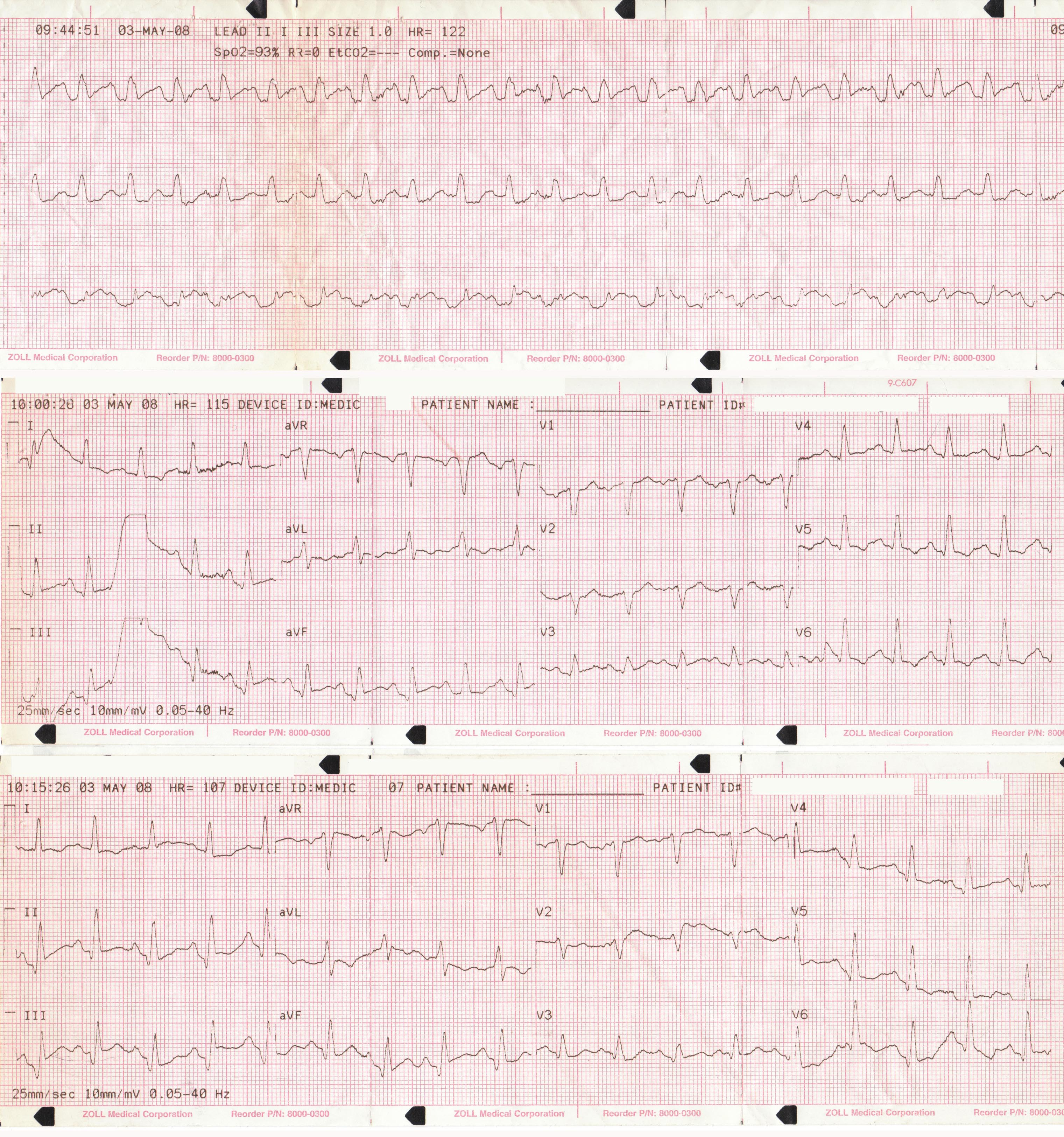 nursing case study and patient education on miocardial infarction Myocardial infarction (mi), is used synonymously with coronary occlusion and heart attack, yet mi is the most preferred term as myocardial ischemia causes acute coronary syndrome (acs) that can result in myocardial death in each case of mi, a profound imbalance exists between myocardial oxygen.