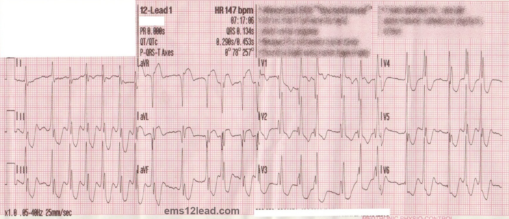 atrial fibrillation Atrial fibrillation occurs when action potentials fire very rapidly within the pulmonary veins or atrium in a chaotic manner the result is a very fast atrial rate — about 400 to 600 beats per.