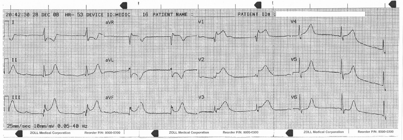 complete heart block case study Original article from the new england journal of medicine — complete heart complete heart block — a study of case 2, showing complete heart block.