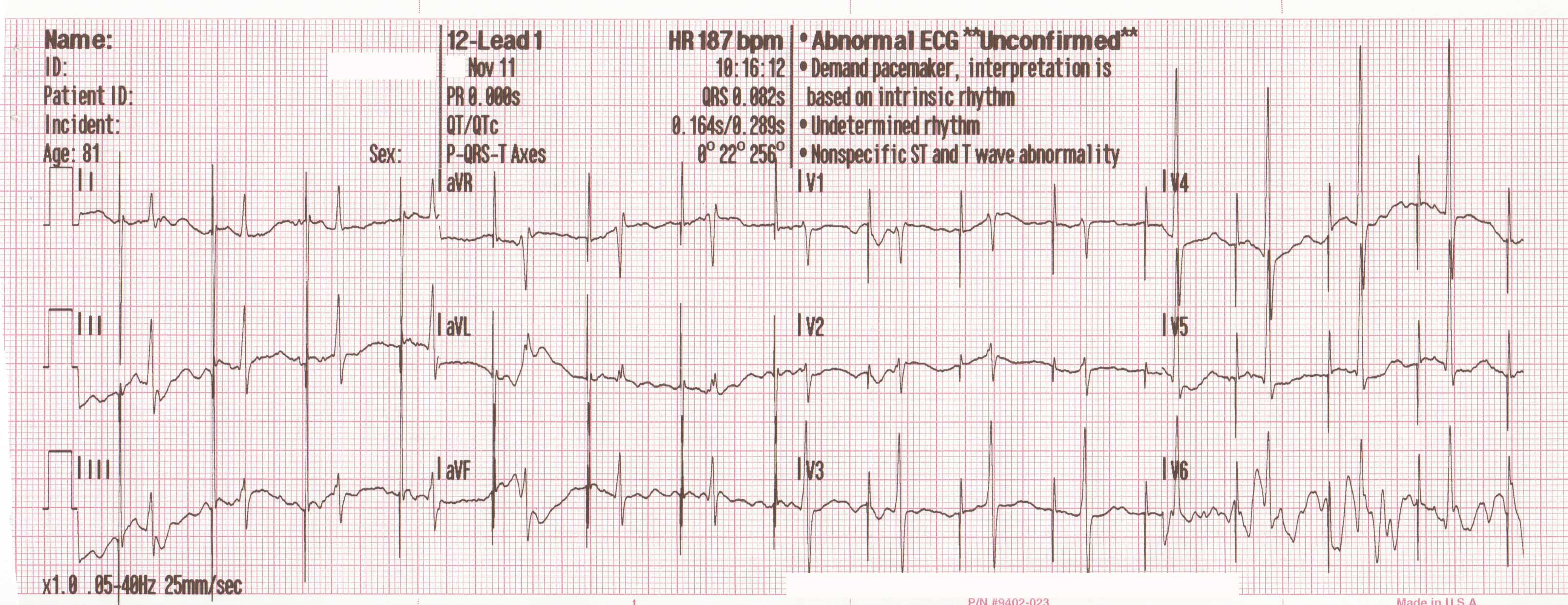 Looking ...  sc 1 st  Case Studies in EKG Pathology - WordPress.com & T-waves | Case Studies in EKG Pathology