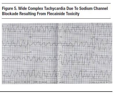 Sodium Channel Blockade | Case Studies in EKG Pathology
