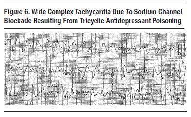 Sodium Channel Blockade | Case Studies in EKG Pathology