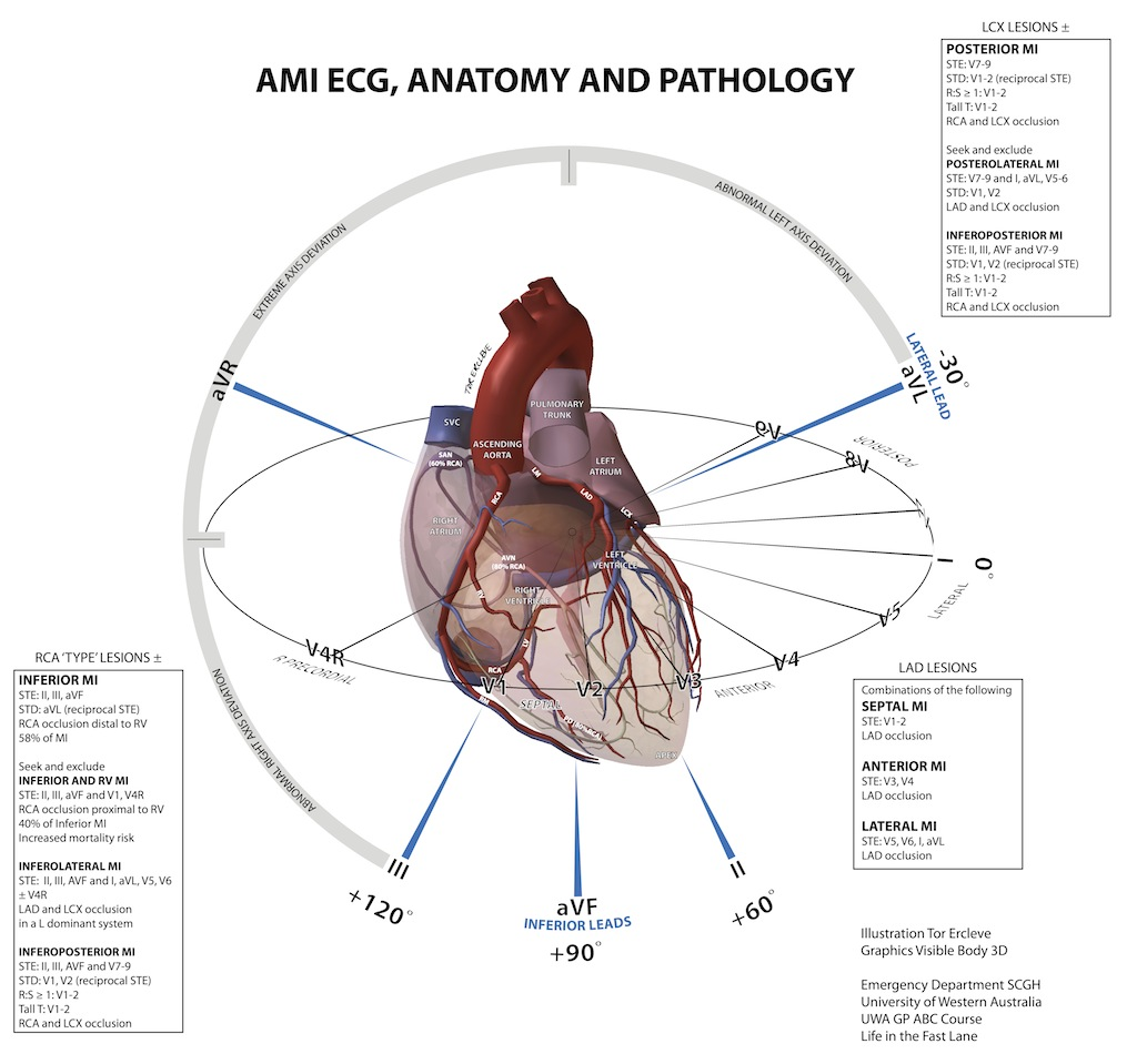 Coronary Anatomy: Visualizations and Variations | Case Studies in ...