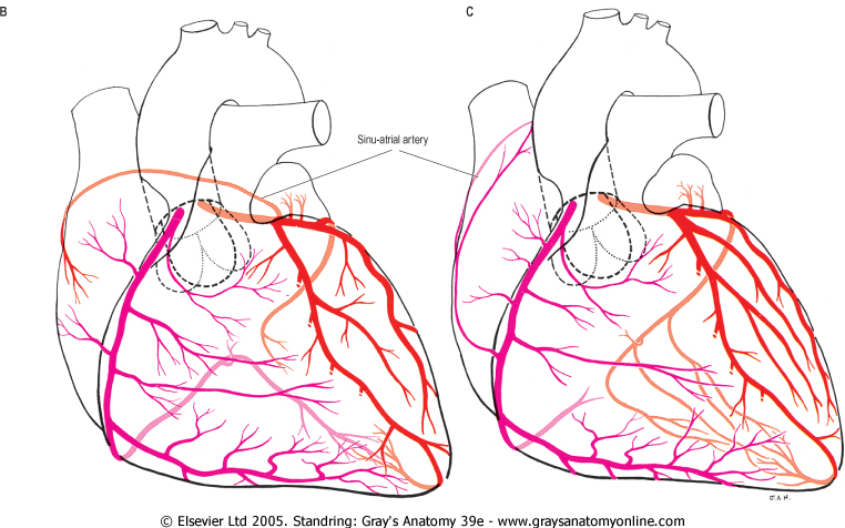 Coronary Anatomy Visualizations And Variations Case Studies In